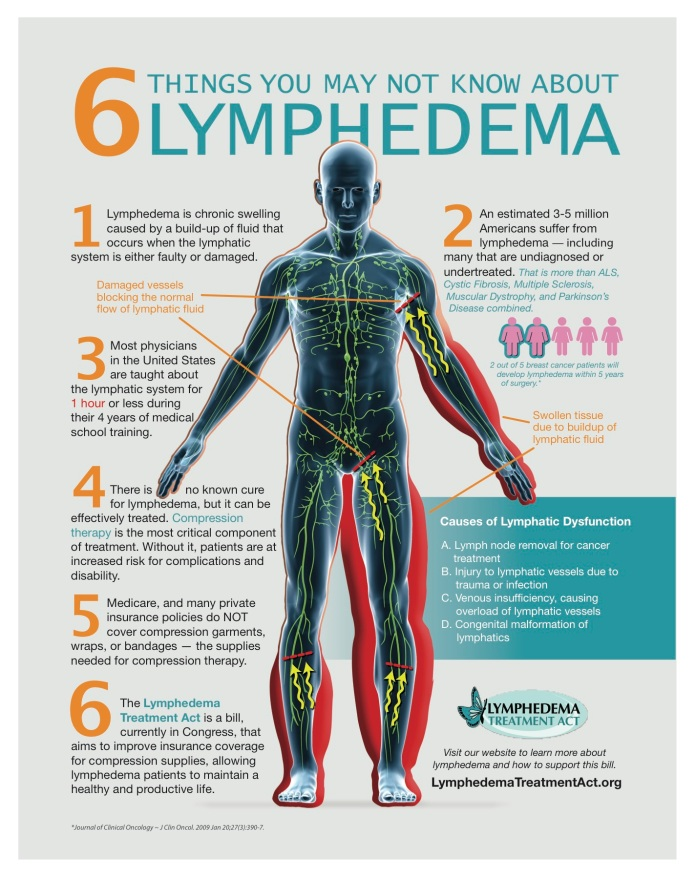 lymphedema-what-you-should-know